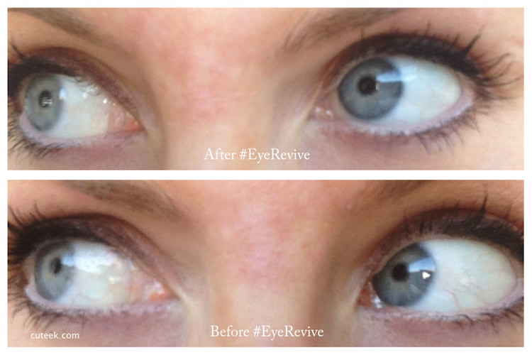 Optrex Eye Revive Before and After